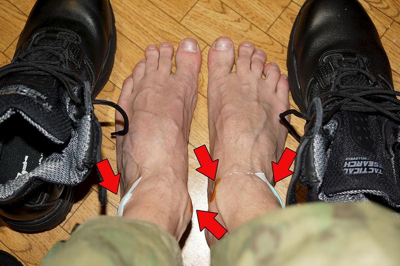 Ботинки натирают пятку: что делать